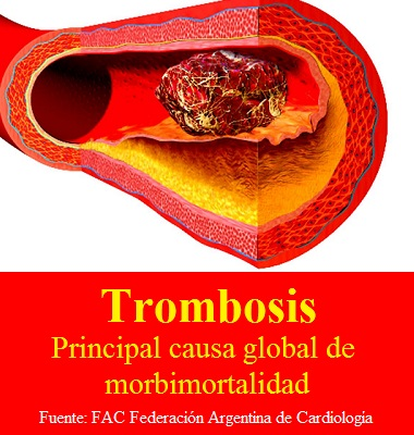 Trombosis: Principal causa global de morbimortalidad