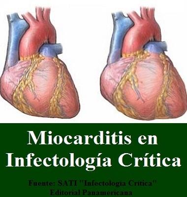 #MIOCARDITIS EN #INFECTOLOGÍACRÍTICA