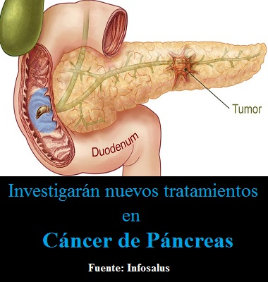 Boehringer Ingelheim y el MD Anderson Cancer Center investigarán nuevos tratamientos en cáncer de páncreas
