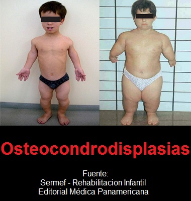 Osteocondrodisplasias - Fuente: SERMEF - Rehabilitacion Infantil - 9788498353440