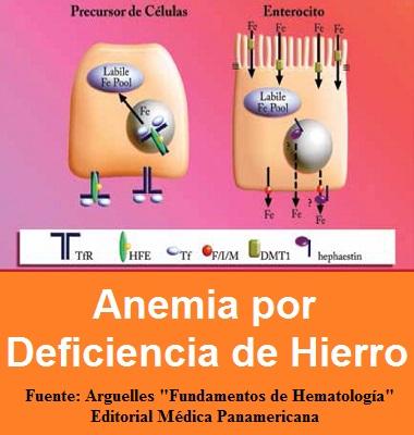 ANEMIA POR DEFICIENCIA DE HIERRO - Arguelles - fundamentos de hematologia - 9786079356088