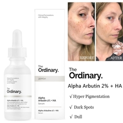 Alpha Arbutin 2% + HA - The Ordinary