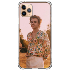 Case Harry Styles #2