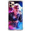 Case Lady Gaga #4