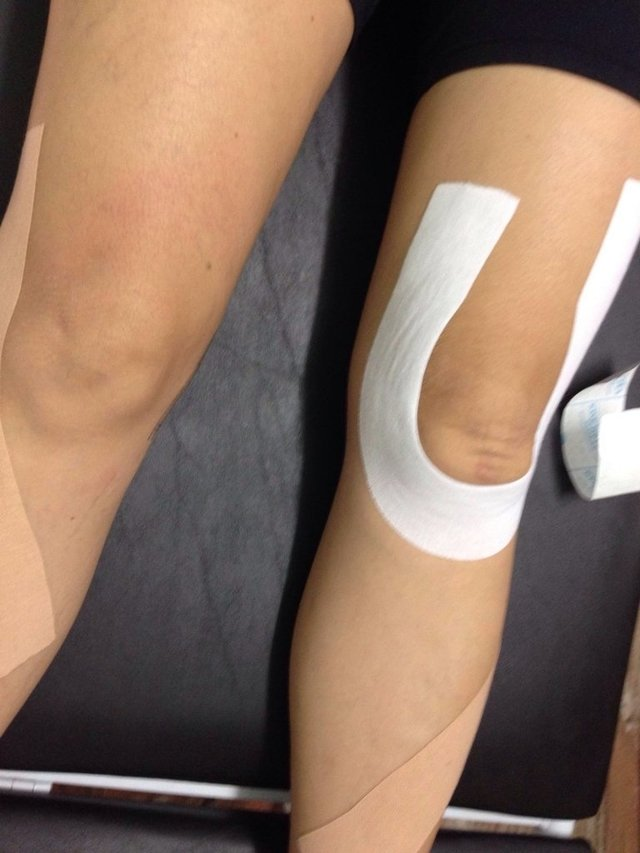 Kinesio Taping - KT3 e KT4 - IPESCURSOS