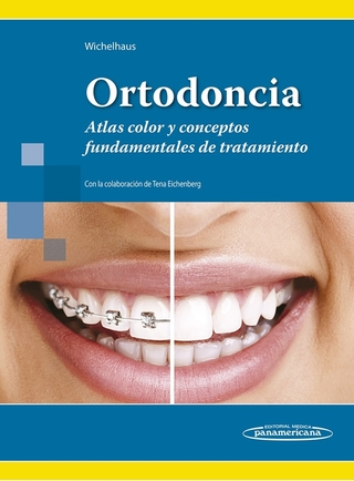 Ortodoncia, Atlas color - Wichelhaus