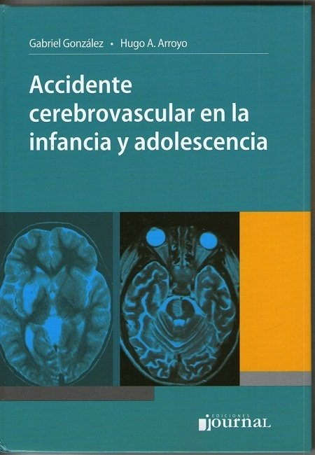 ACCIDENTE CEREBROVASCULAR EN LA INFANCIA Y ADOLESCENCIA