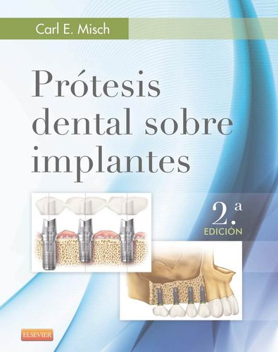 PRÓTESIS DENTAL SOBRE IMPLANTES 2° Ed. - Misch - Isbn: 9788490228630