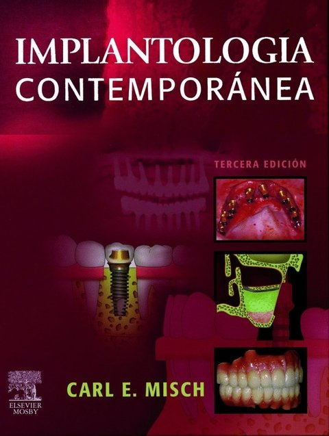 Misch - Implantología Contemporanea 3° Ed. - 9788480863841