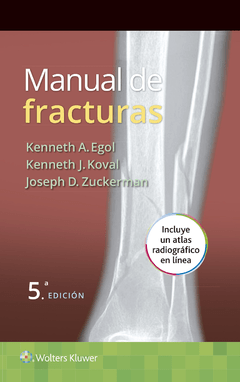 Manual de Fracturas 5° Ed - Egol - Isbn: 9788416004829