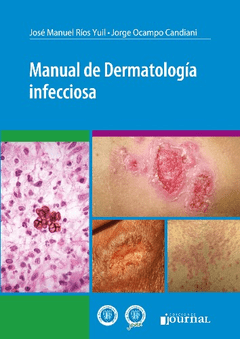 MANUAL DE DERMATOLOGIA INFECCIOSA