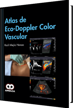 Atlas de Eco-Doppler Color Vascular - Mejía Henao - 978-958-8950-79-2