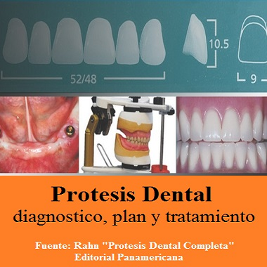 Protesis dental, diagnostico plan y tratamiento