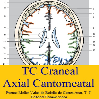 TC CRANEAL - AXIAL CANTOMEATAL