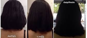 Image of True Monovin. A. Vitamina For Rapid Growth Hairs
