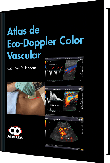 Atlas de Eco-Doppler Color Vascular