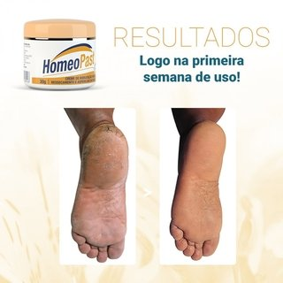 Homeo Past Creme Hidratante- 30G na internet