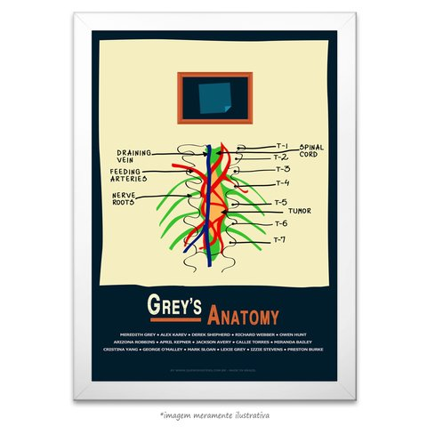 Poster Grey's Anatomy - Tumor e Post-it - comprar online