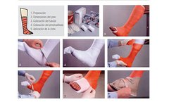 3M - Yesos Scothcast Plus - Fer Medical SRL : : Insumos Médicos